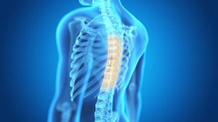 Ask Dr T Is My Tight Thoracic Spine Killing My Overhead Squat